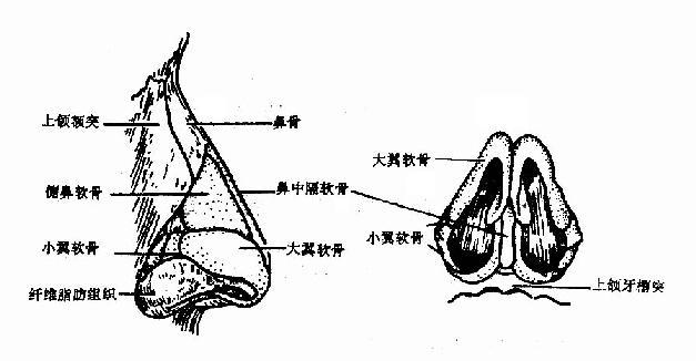 外鼻(external nose)由骨、软骨构成支架,外覆软组织和皮肤,略似锥形,有鼻根(nasal root )、鼻尖(nasal apex)、鼻梁(nasal bridge)、鼻翼(nasal alae)、鼻前孔(anterior nares,nostril)、鼻小柱(nasal columella)、等几个部分(图1-1)。  图1-1 外鼻 外鼻的骨性支架:由鼻骨、额骨鼻突、上颌骨额突组成。 鼻骨左右成对,中线相接,上接额骨鼻突,两侧与上颌骨额突相连。鼻骨下缘、上颌骨额突内缘及上颌骨腭突游离缘共同